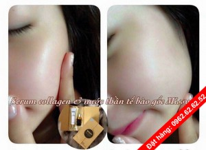 serum-collagen-missy-5
